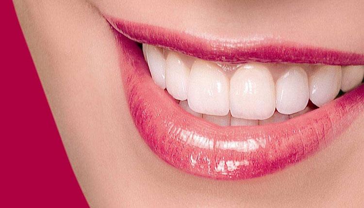 رفع زردی دندان با روش های خانگی